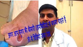Hba1c test in hindi