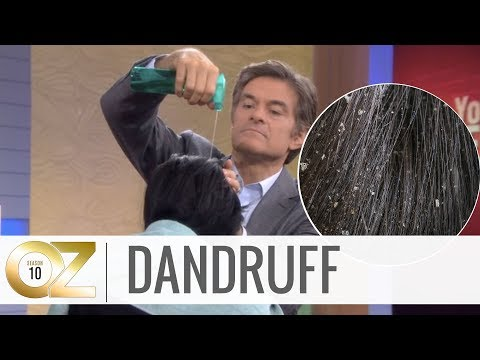 Quick and Easy Home Remedies For Dandruff