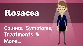 Rosacea - Causes, Symptoms, Treatments & More…