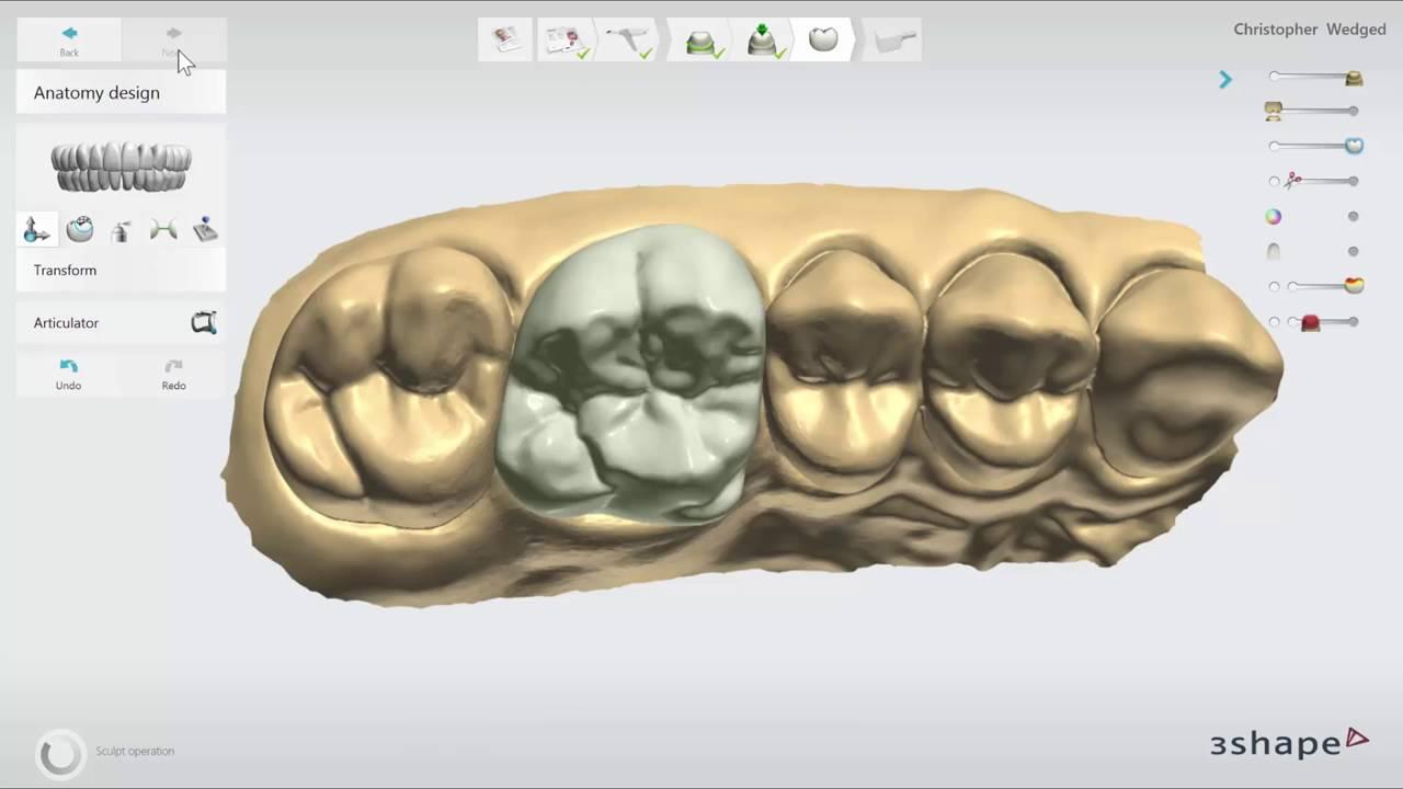 TRIOS Practice Lab In depth Crown Design - YouTube