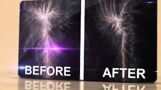 видео Шампунь Alerana: комплексное  решение проблемы выпадения волос
