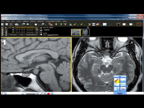 Neuro Imaging Board and Recredentialing Review 13 thumbnail
