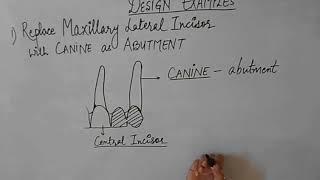 Cantilever Fixed Partial Denture
