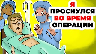 Я проснулся во время операции  Хирург был в панике