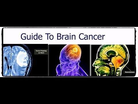 guide-to-brain-cancer
