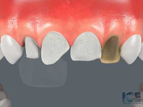 Futrell & Reese Family Dentistry Shares Video About Porcelain Veneers In Jacksonville, FL