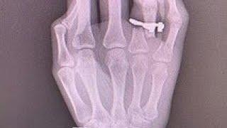 坂口杏里さんが右手の指を骨折「ドアに見事に挟み」 - ライブドアニュース.