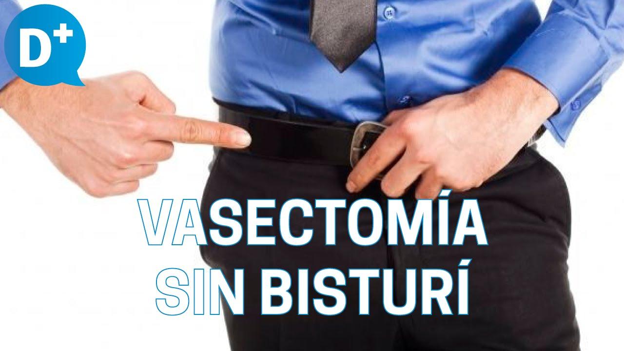 Se hace vasectomia como reversible la