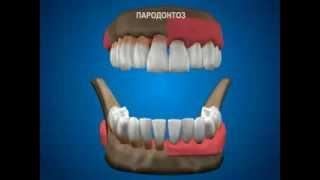 Что такое пародонтоз(, 2013-10-01T07:51:38.000Z)
