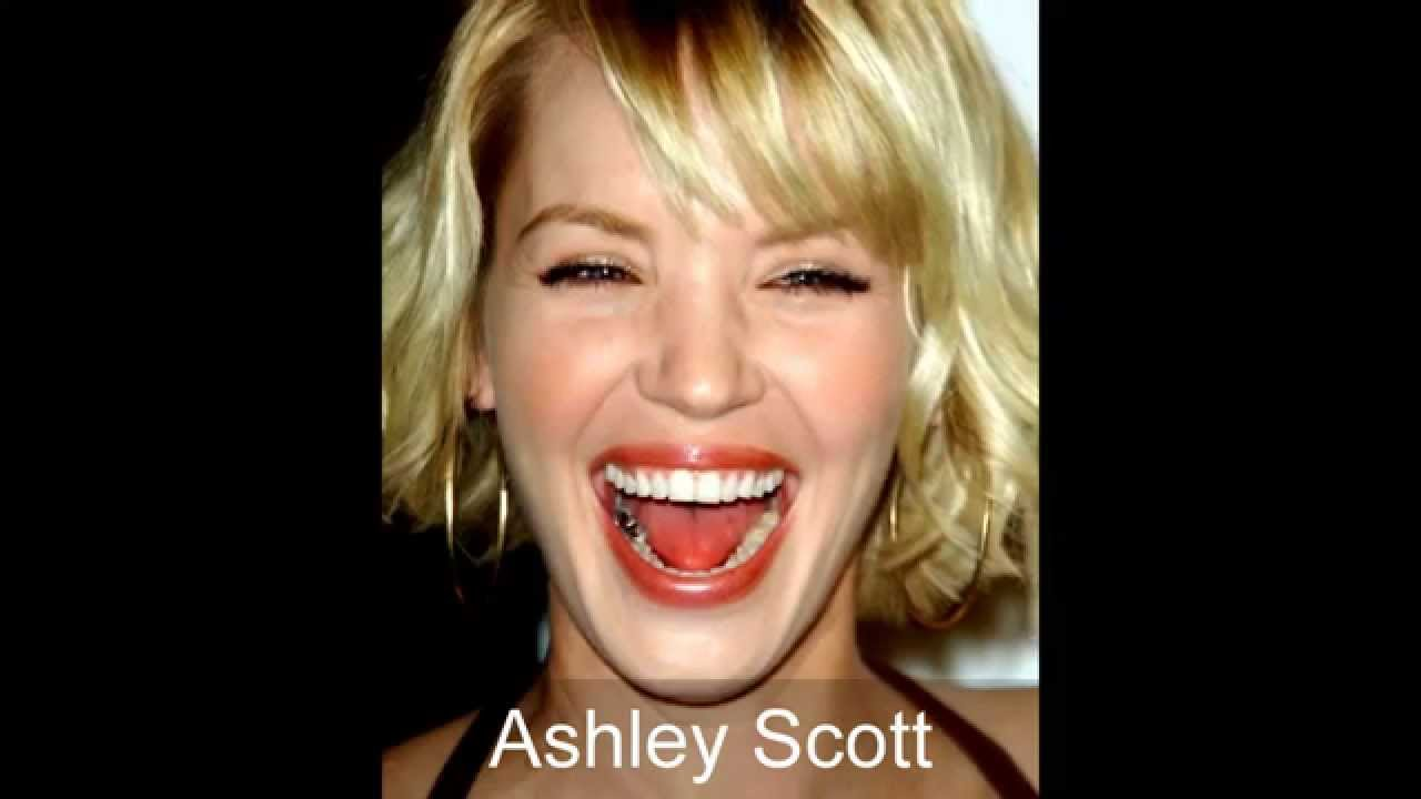 21 Celebrities with Dental Implants or Cosmetic Dentistry