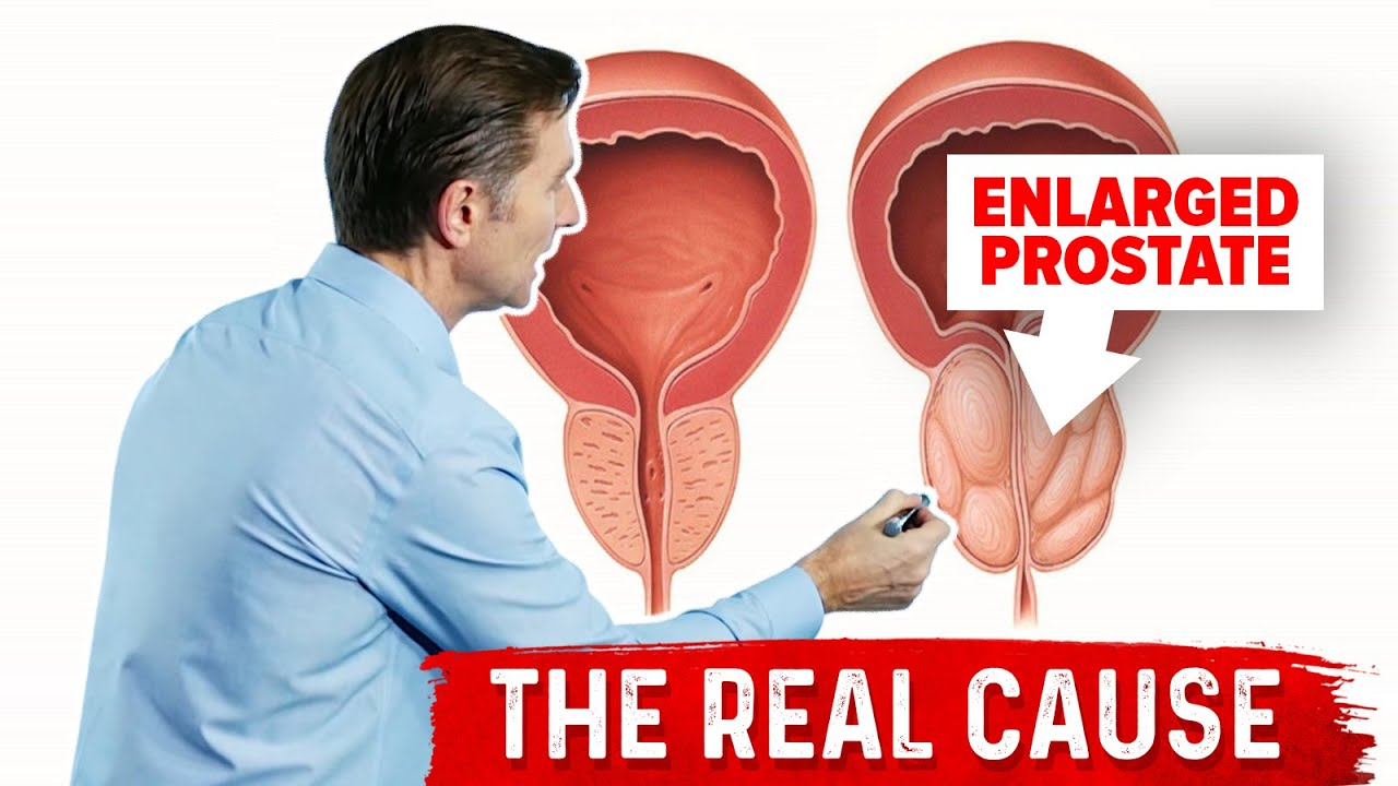 low testosterone and enlarged prostate)