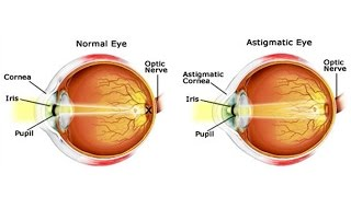 IT'S NOW POSSIBLE TO RESTORE AND SAVE YOUR EYESIGHT