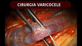 Infertilidade nos veias varicosas testículos