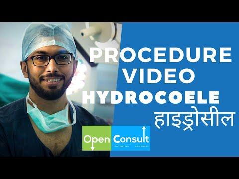 HYDROCOELE SURGERY Video | हाइड्रोसील सर्जरी वीडियो | OpenConsult