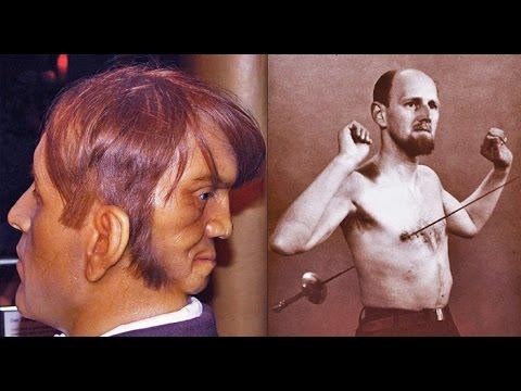 Цирк уродов: истории и трагедии цирковых уродцев, часть 3