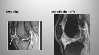 Syndrome fémoro patellaire chez le runner