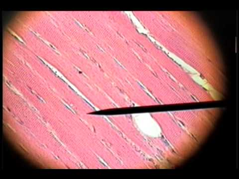 slide 34 - skeletal muscle - youtube, Muscles