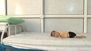 The tiny bodies ravaged by starvation in Yemen's forgotten war