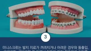 안산 본오동 한사랑치과 - 미니스크류 치아교정