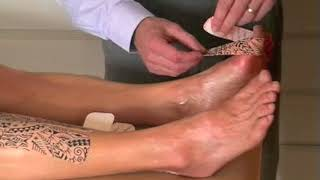 dynamic-taping-for-hallux-valgus