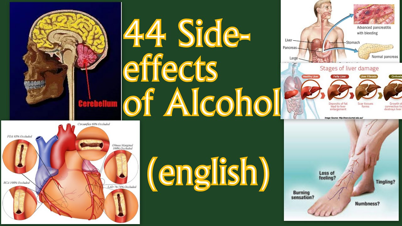 Short-term effects of alcohol consumption