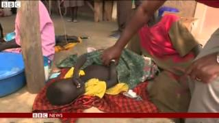 Cholera outbreaks have been reported in nine of South Sudan