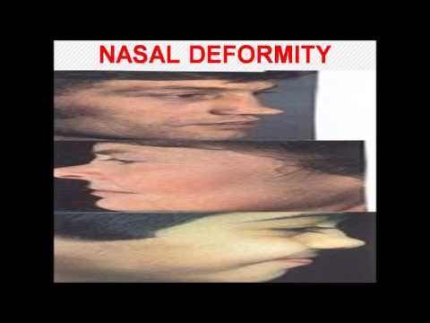 NASAL BONE FRACTURE DR  FOHEID ALSOBEI