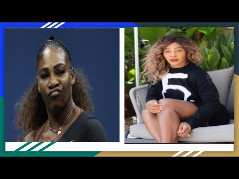 Download TWITTER SLAMS SERENA WILLIAMS AFTER  POSTING PIC OF HER BLEACHED SKIN