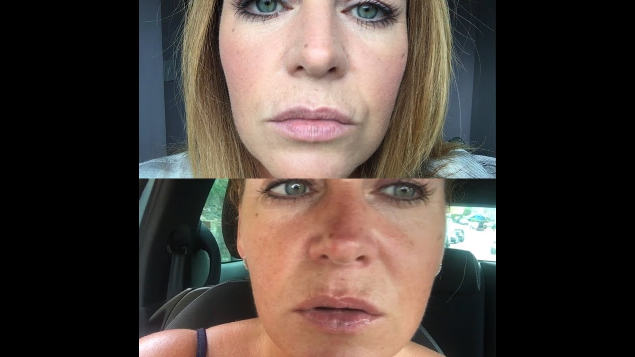 Smokers Lines Fillers, Vermilion Border lip injections