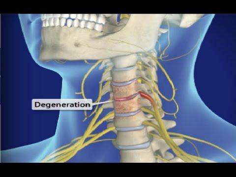 Cervical Spondylosis Arthritis Of The Neck Neck Pain