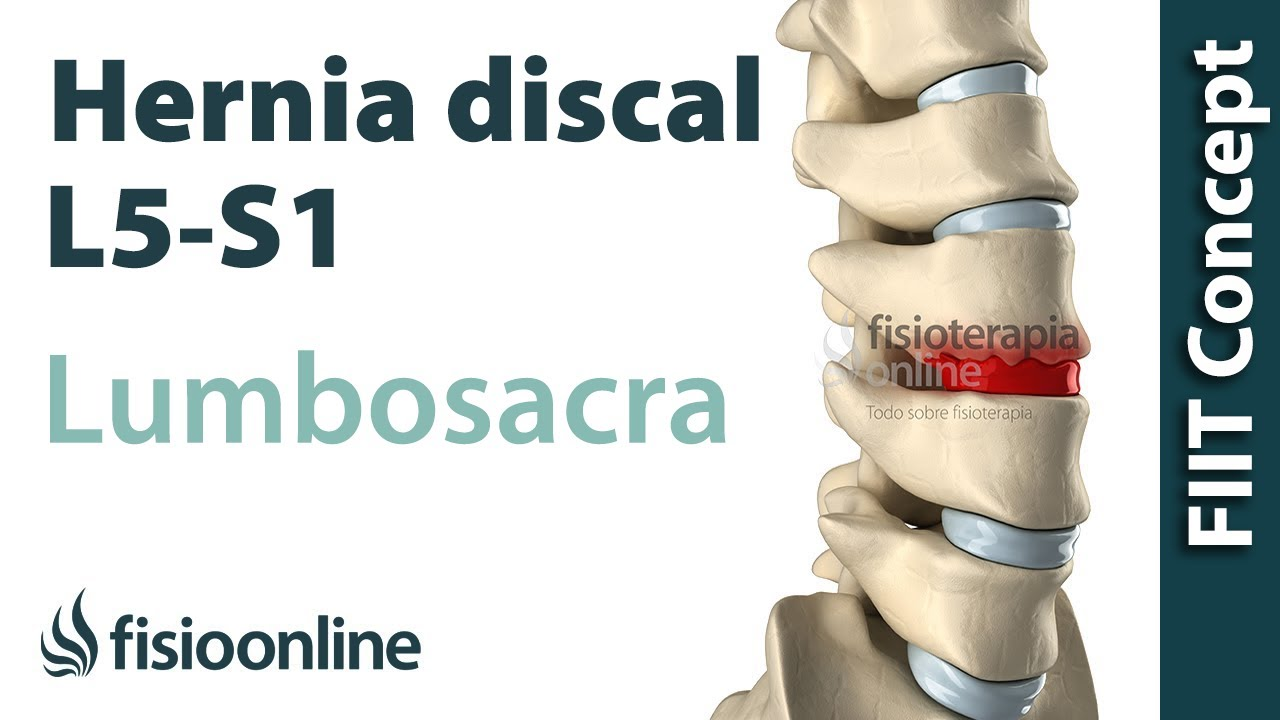 Hernia Discal Lumbar Entre La L5 Y S1 O Quinta Vértebra Lumbar Y El Sacro Youtube