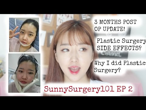 SS101 Ep 2: Plastic Surgery Side Effects? 3 Months Post op & MORE!