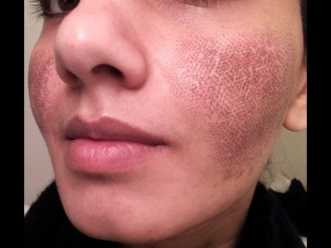 Laser Skin Resurfacing For Acne Scar Removal Funnydog Tv