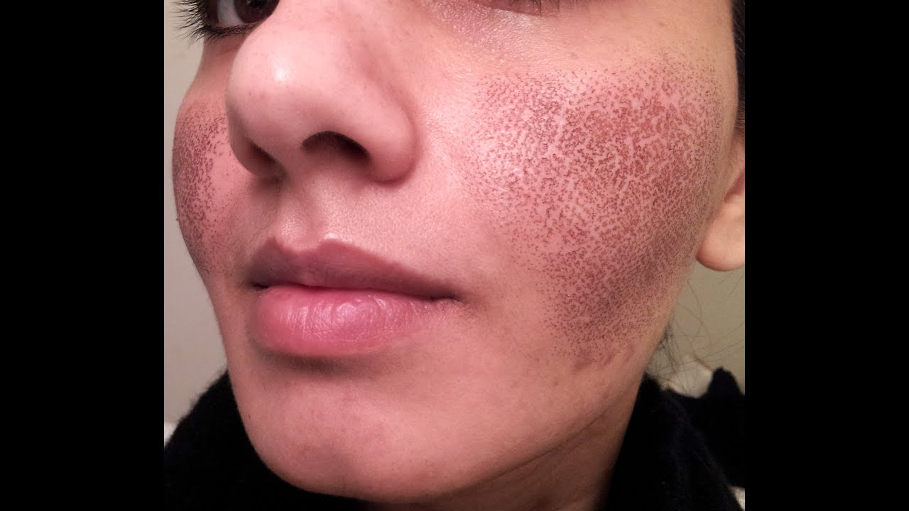 Before Amp After My Fraxel Laser Experience For Acne Spots