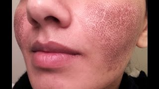 BEFORE & AFTER my Fraxel laser experience for acne spots & large pores - GONE BAD(check out my other video for my cystic acne pics taken in 2009-2011) this video is a review from my 2015 fraxel laser treatment for acne marks/dark spots & large ..., 2015-06-13T01:07:46.000Z)