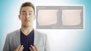 Dancing star Kris Readings - Coolsculpting Patient Testimonial Thumbnail