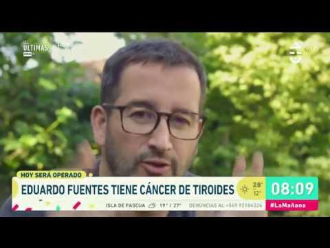 Eduardo Fuentes será operado de cáncer de tiroides  La Mañana