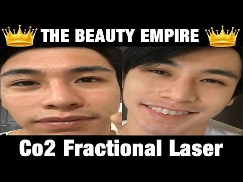 CO2 FRACTIONAL LASER | THE BEAUTY EMPIRE