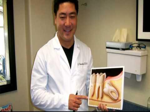Dr Takeuchi Sedation Dentist San Jose