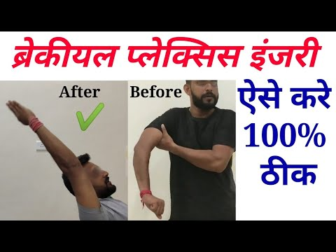 Best Brachial Plexus Injury Treatment in india || brachial plexus treatment without surgery
