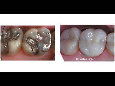 how to know if i have mercury fillings