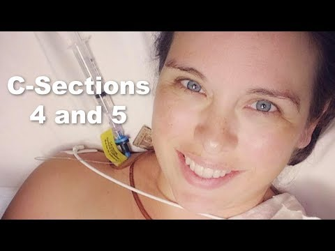 The 4th & 5th C-sections: 2 Birth Stories