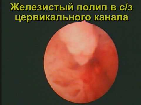 Удаление полипов (полипэктомия) цервикального канала