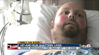 Man injured in hit-and-run speaks from hospital bed