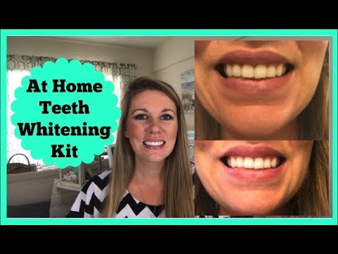 Best At Home Teeth Whitening On A Budget Youtube