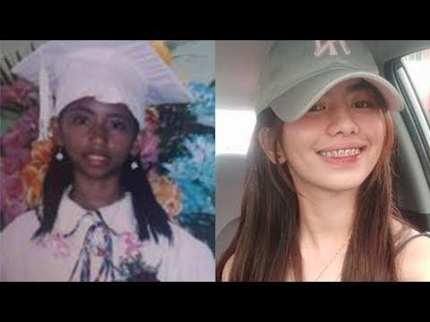 Tanpa Operasi, Gadis Ini Ungkap Rahasia Kulitnya Jadi Putih