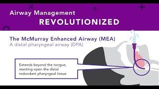 The New Distal Pharyngeal Airway (DPA)—McMurray Enhanced Airway (MEA) to Keep Patients Breathing