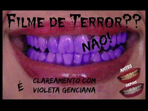 Clareamento Dental Com Violeta Ticia Mendes Youtube
