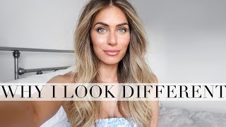 WHY I LOOK DIFFERENT | Lydia Elise Millen