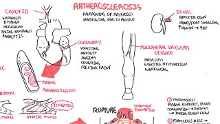 Atherosclerosis - Pathophysiology